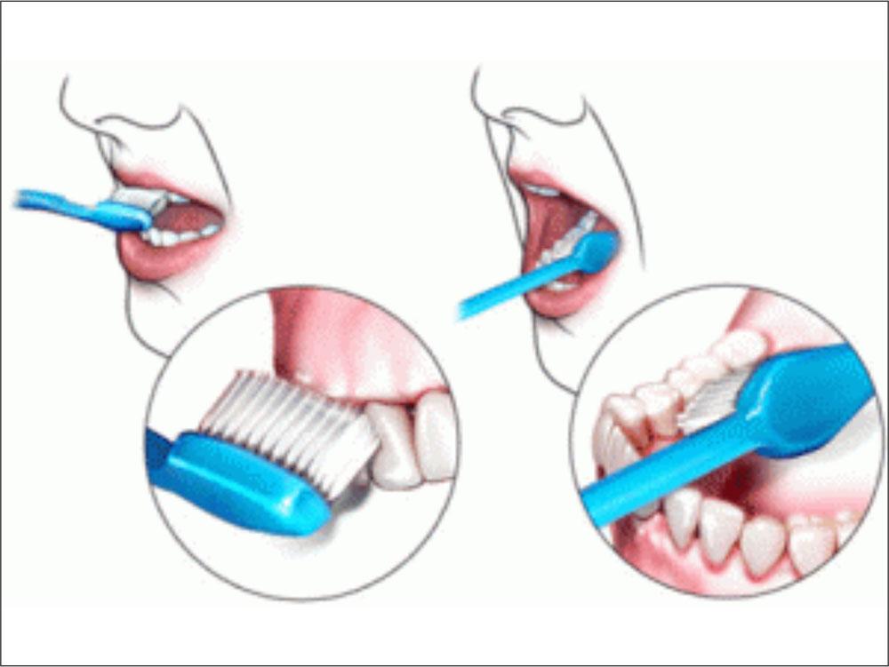 Cum sa va periati dintii. Sfaturi utile.